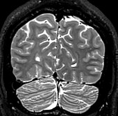 Normal Coronal T2 Brain