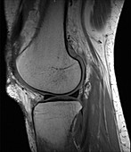 Knee, MRI, no artefact