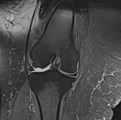Obese knee, MRI