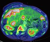 Metastatic ovarian carcinoma, PET CT scan