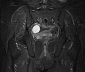 Ovarian cyst, MRI