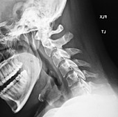 Normal Cervical Spine, X-Ray