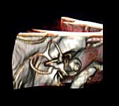 Inner Ear Structures, 3D MRI