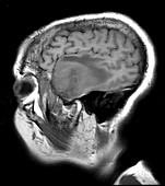 Temporal Glioblastoma, MRI