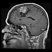 Cystic Meningioma, MRI