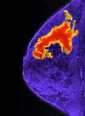 Breast Cancer, MRI