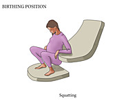 Squatting Birthing Position, illustration