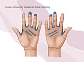 Missed Area in Hand Washing, illustration