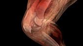 Knee Anatomy, CT Scan