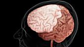 Brain, Frontal Lobe