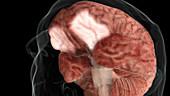Occipitofrontal Cortex, Inferior View