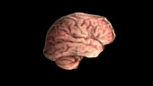 Brain with Alzheimer's Disease, Lateral View