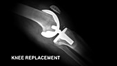 Knee Replacement, X-Ray