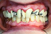 Chipped and fractured dental crowns