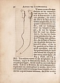 Spermatozoa of a dog by van Leeuwenhoek, 1685