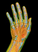 Human hand, 3D CT scan