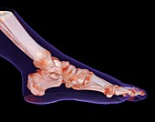 Human foot and ankle, 3D CT scan
