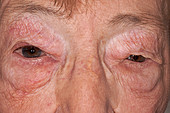 Angioedema of the eyelids due to drug reaction