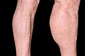 Baker's knee cyst