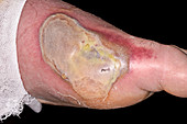 Large infected blister on a foot