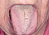 Angioedema of the tongue due to drug reaction