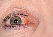 Conjunctival oedema due to allergy