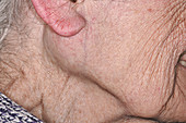 Parotid gland tumour