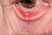 Chalazion cyst on an eyelid