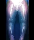 Leg bones of 18-month-old infant, X-ray