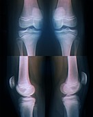 Teenage girl's knees, bilateral X-rays