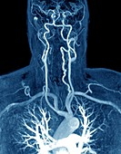 Cervical artery dissection, MRI angiogram