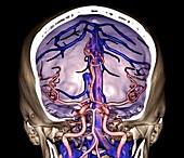 Brain arteries and venous sinuses, 3D CT angiogram