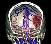 Stroke and intracerebral haemorrhage, 3D CT angiogram