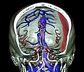 Subdural haematoma, 3D CT angiogram