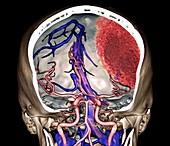 Extradural haematoma, 3D CT angiogram