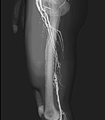 Nearly blocked femoral arteries, 3D CT angiogram