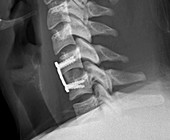 Cervical vertebral implant and repair, X-ray