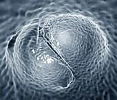 Aortic valve congenital deformity, 3D CT scan