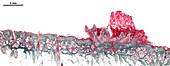 Human scalp wart, light micrograph