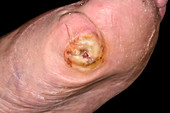 Infected amputated toe