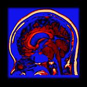 Enhanced Clival Meningioma on MRI