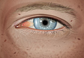 Pterygium in stage 1