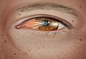 Pterygium in stage 3
