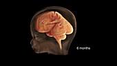 Prenatal Brain Development at 6 Months