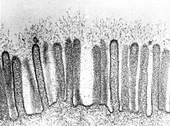 Epithelial Glycocalyx, EM