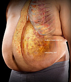 Visceral and Subcutaneous Fat