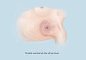 Mastectomy, Step 2 of 8, Illustration