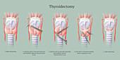 Thyroidectomy Procedure, Illustration