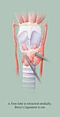 Thyroidectomy, 4 of 5