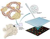 Gene profiling for predicting colon cancer